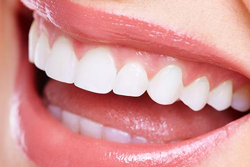 憧れの白い歯を実現するホワイトニング